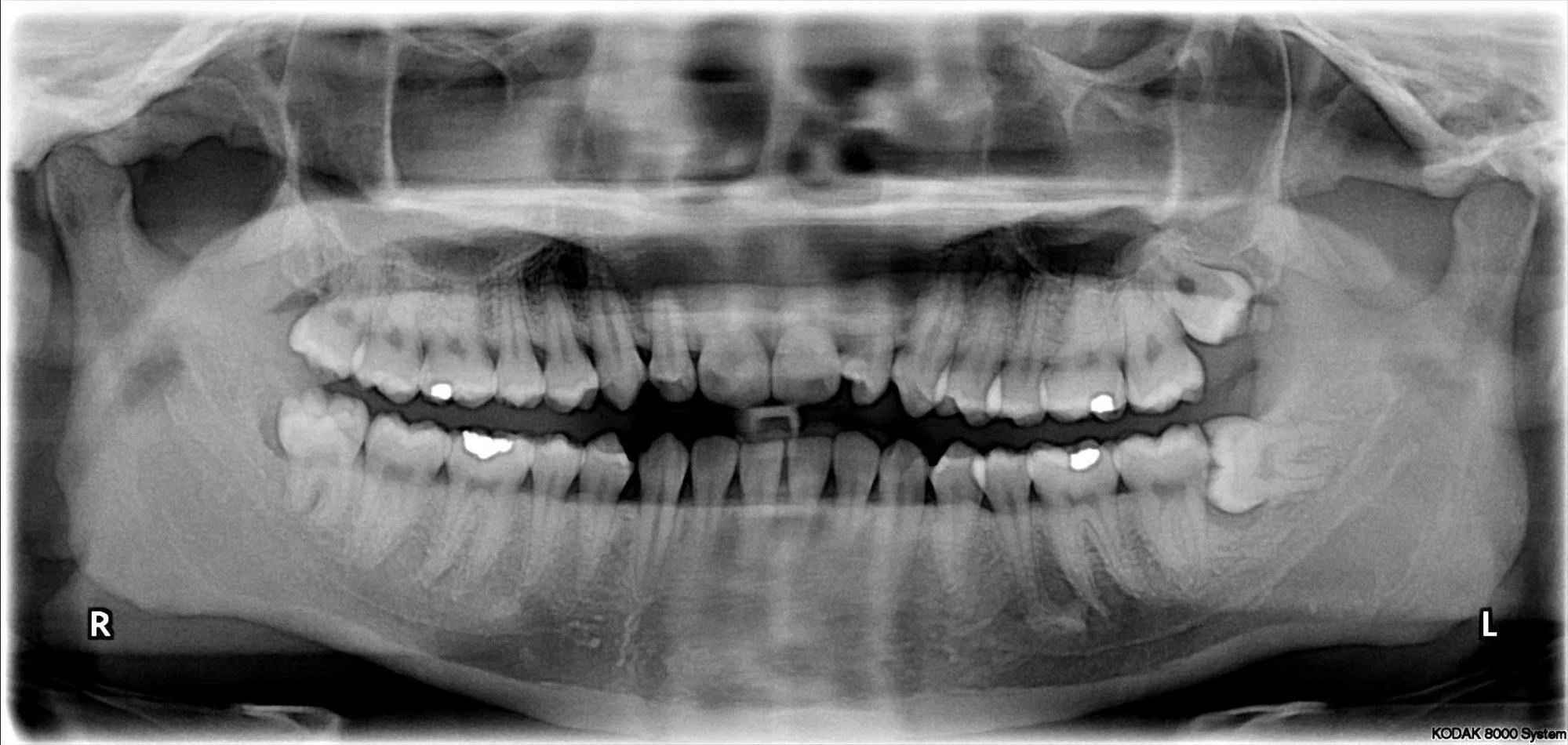 mercury-based dental fillings